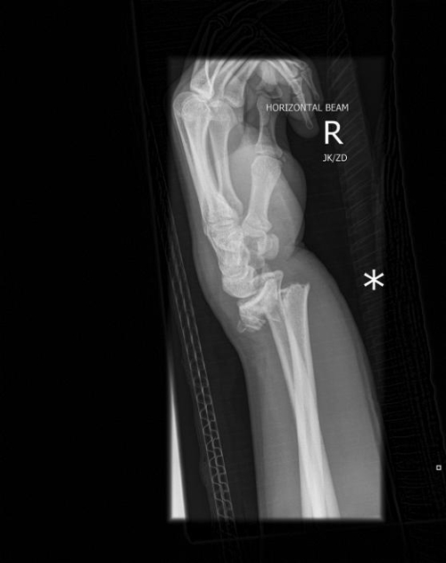 Collesfracture4fromRadiopaediaDOTorg