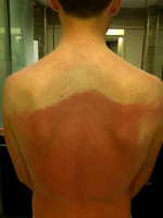 sunburn image posted on twitter yfrog dot com nz3flucj 150x200
