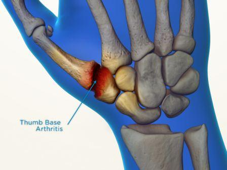 thumb base arthritis bone skin
